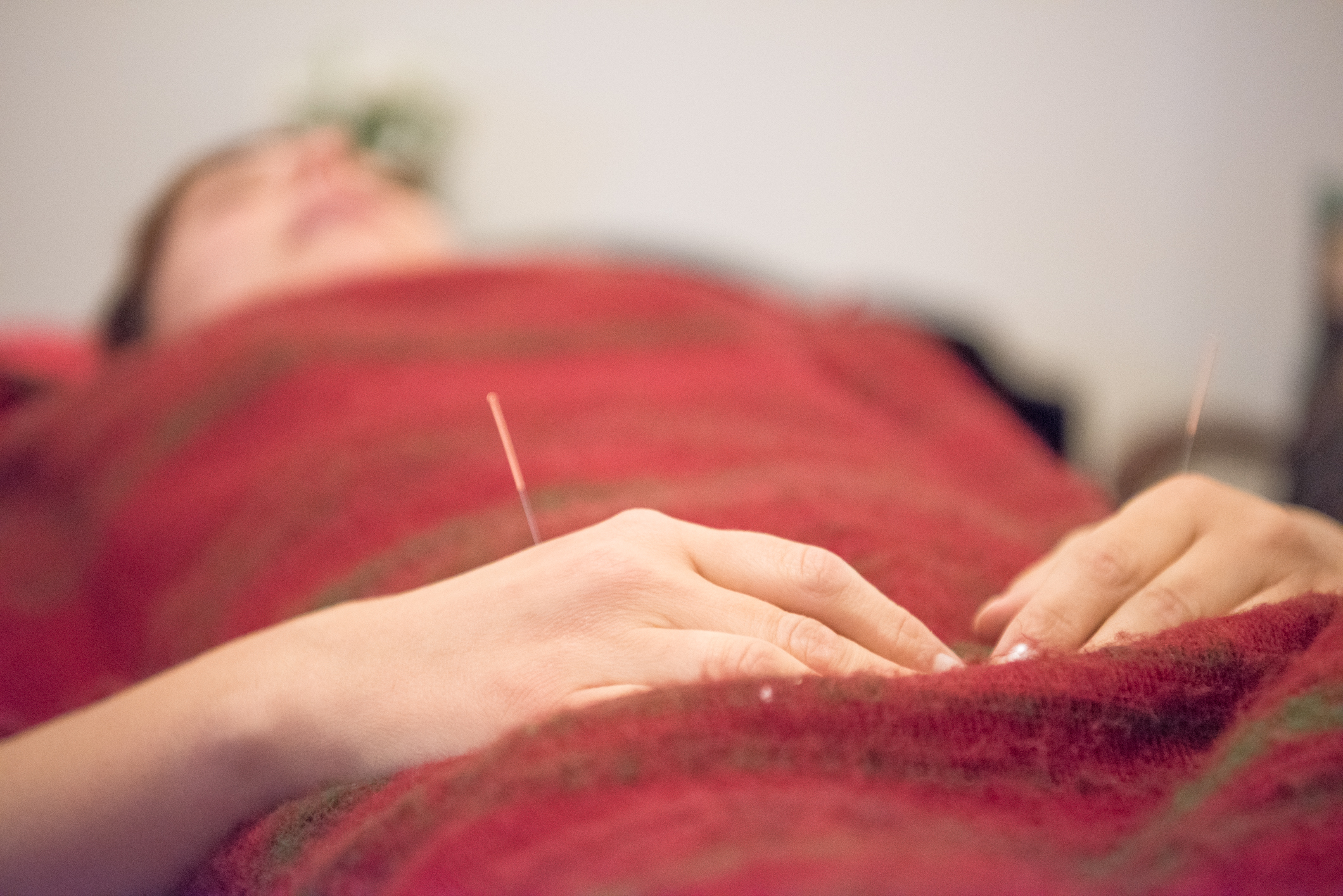 Acupuncture Relaxation Wellbeing